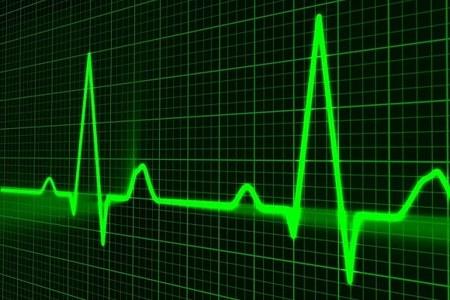 """""""Valvole aortiche percutanee 2"""": attivi i primi Accordi Quadro"""